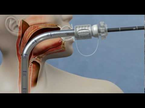 Guardus® overtube sharp foreign body retrieval animation