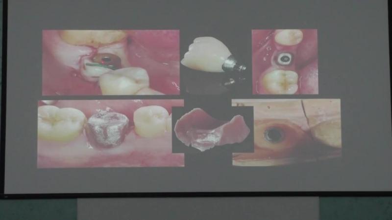 Доклад Павла Куца по основам имплантологии.