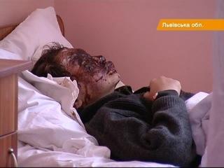 Вибух у нафтогазовій свердловині покалічив трьох львівських дітей - «Факти»