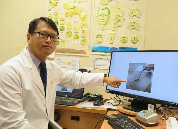Из уха пожилой пациентки вытащили живую многоножку длиной более 10 см