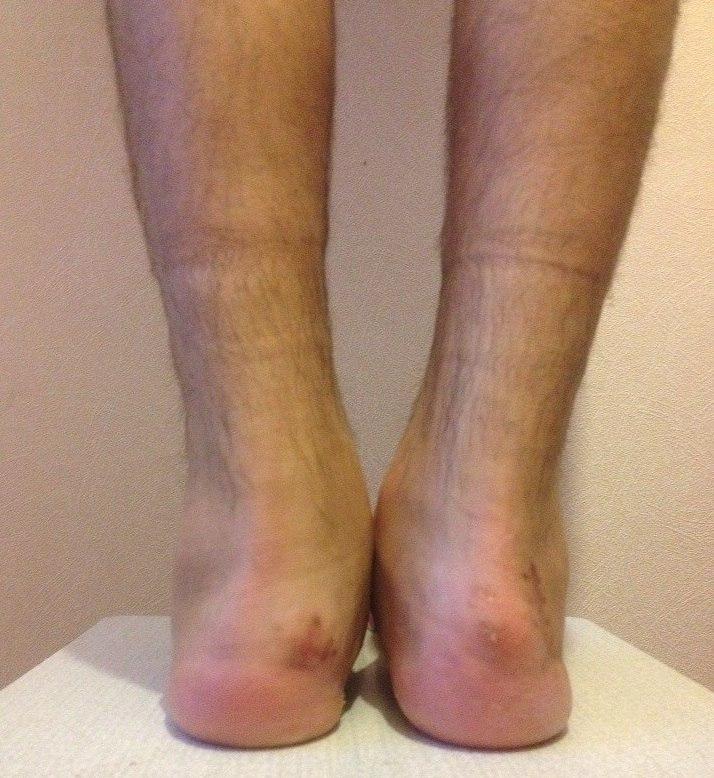 Был перелом пятки. Гипс сняли 2 дня назад. Нога болит и опухоль ...