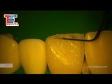 Прямая реставрация фронтального зуба. внутренняя анатомия
