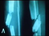 Лечение открытых переломов с обширными гнойными ранами, 1986