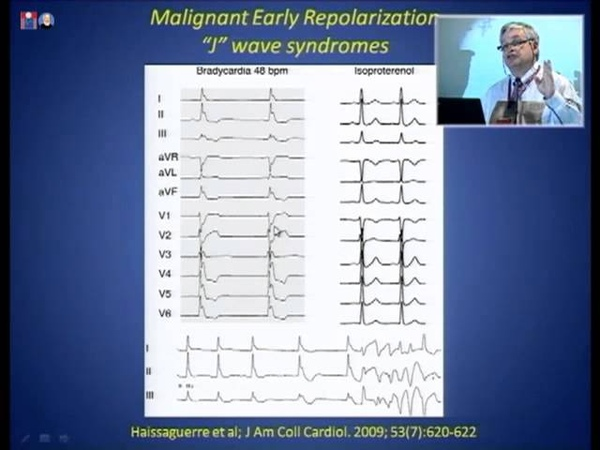 Brugada Syndrome, Malignant Early repolarization Syndrome: Dr. Martin Green 29.09.2013 17