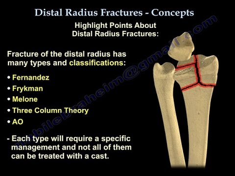 Distal Radius Fractures - Everything You Need To Know - Dr. Nabil Ebraheim