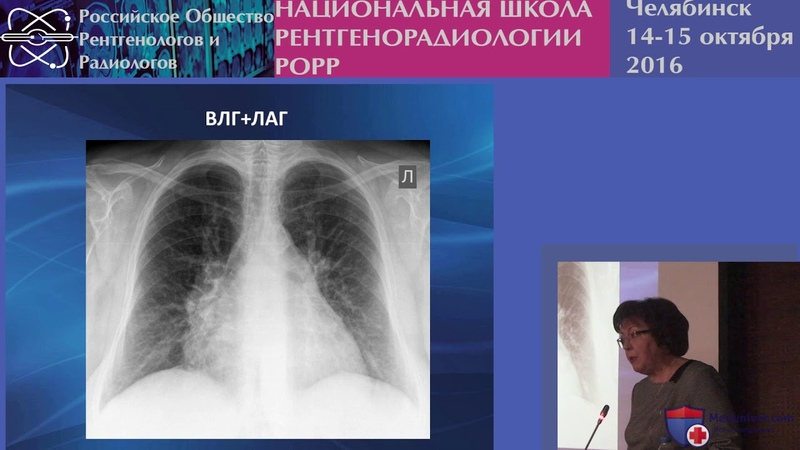 Признаки легочной гипертензии на рентгенограмме
