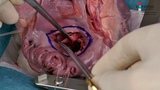 Implantation of Perceval Valve In Mitral Position – A New Technique