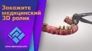 Закажите 3D ролик для стоматологии. Базальная имплантация. Зубная имплантация.