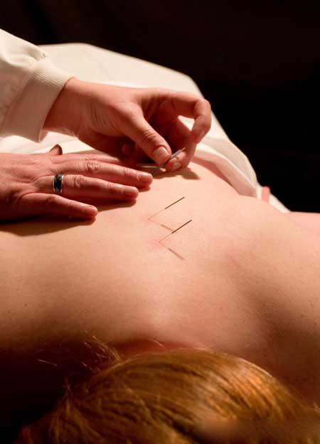 Иглоукалывание - древняя китайская медицинская практика.