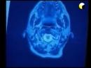 Под прицелом мозг Фильм о волновых средствах оружии излучающего типа психотронном оружии адресного воздействия