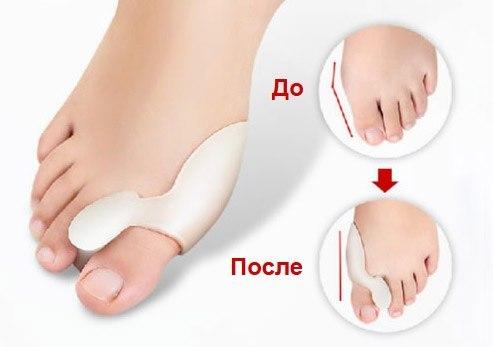 Косточка на ноге операция на шишке у большого пальца