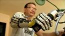 Do Ceará para o mundo Brasileiro fabrica sua própria prótese de braço