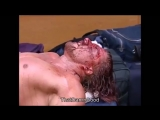 Exclusive-Royal-Rumble-2000-footage-Triple-H-receives-stitches