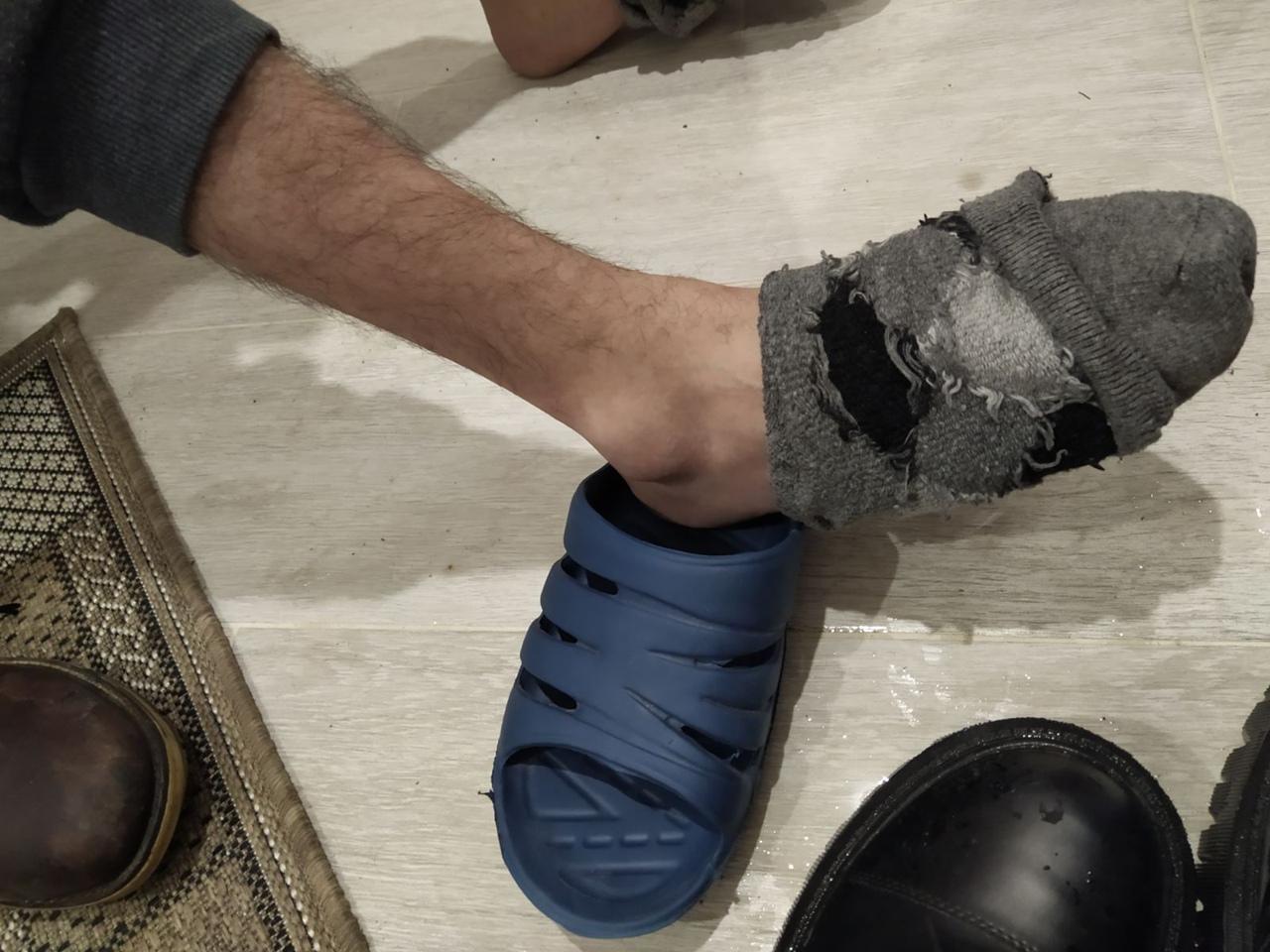 Парень из Янино, сломавший ногу при попытке сесть в автобус, хочет наказать водителя Молодой челове...
