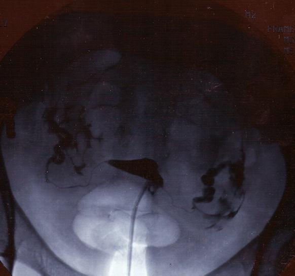 гистеросальпингография  снимок