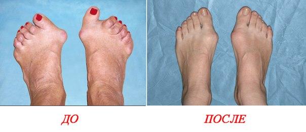 Часто ли вы носите неудобную обувь, которая деформирует стопу? Раньше артроз считался профессиональным заболеванием