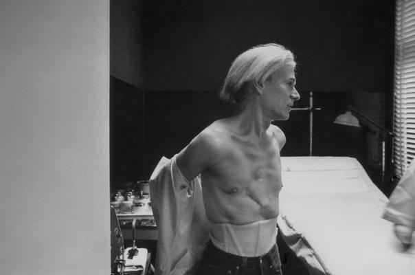 Энди Уорхол показывает шрамы Фотография Уорхола, сделанная Робертом Левином в 1981 году в мае. На ней видно, какие следы оставили покушение (в июне 1968 года радикальная феминистка Валери