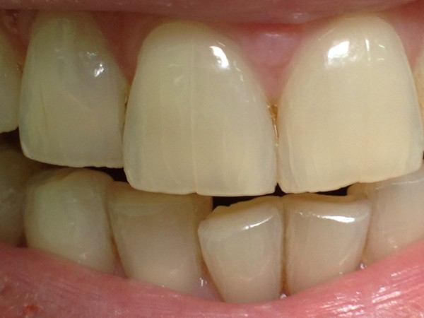 Стоматология. Сложное простыми словами: Отбеливание