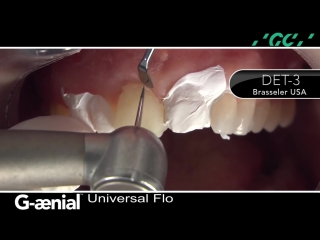 Developing a Functional Composite Prototype Using G-aenial Universal Flo