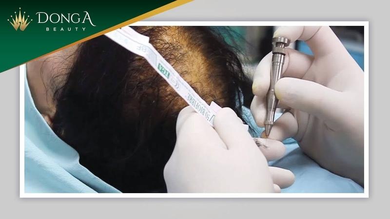 Cấy tóc sinh học Biofibre lần đầu tiên có mặt tại Việt Nam