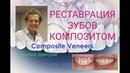 Реставрация зубов композитными винирами Трансформация клыков в резцы Виниры до и после Composite