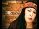 Dilberay - Noldu Gardaş (©!h@ΠΠ)