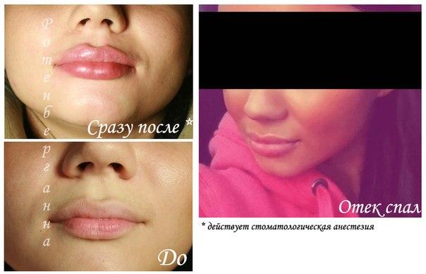 увеличение губ москва