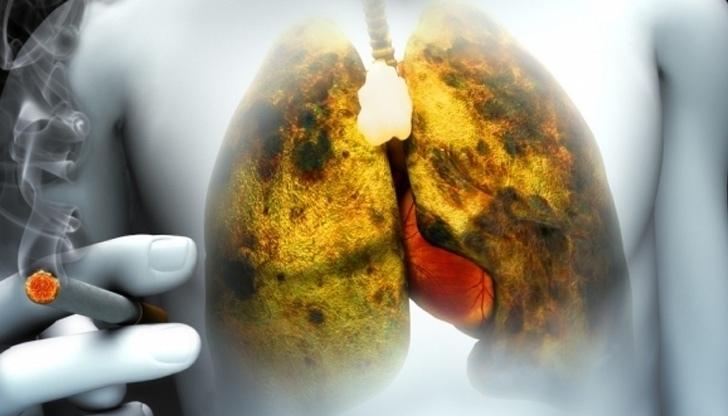 Что такое рак легких?