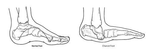 Диабетическая остеоартропатия (стопа Шарко)