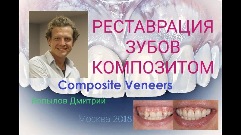 Реставрация зубов композитными винирами. Трансформация клыков в резцы. Виниры до и после. Composite