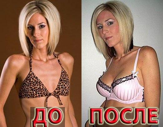 3 размераОтвет. Ответ принят. Какого размера грудь Вы хотите?