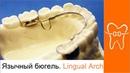 Ортодонтические аппараты Язычная дуга Оrthodontic appliances Lingual Arch