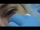 Коррекция носослезной борозды в клиниках Реформа by Dr. Mikhaylova