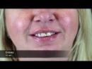 Новое Преображение в стоматологической клинике Астра на Ропшинской