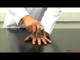 Super-strong neodymium magnets crushing a mans hand