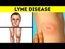 Had I Known The Lyme Disease Symptoms Earlier, I'd Have Avoided Complications