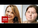Coping with our daughter's new face BBC News