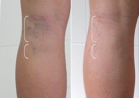 Темные пятна на ноге при варикозе фото