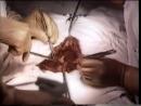 Кесарево сечение в нижнем маточном сегменте поперечным разрезом