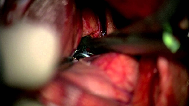Clipping of bilat MCA a coiled ACOM aneurysm thru a modified lat supraorbital