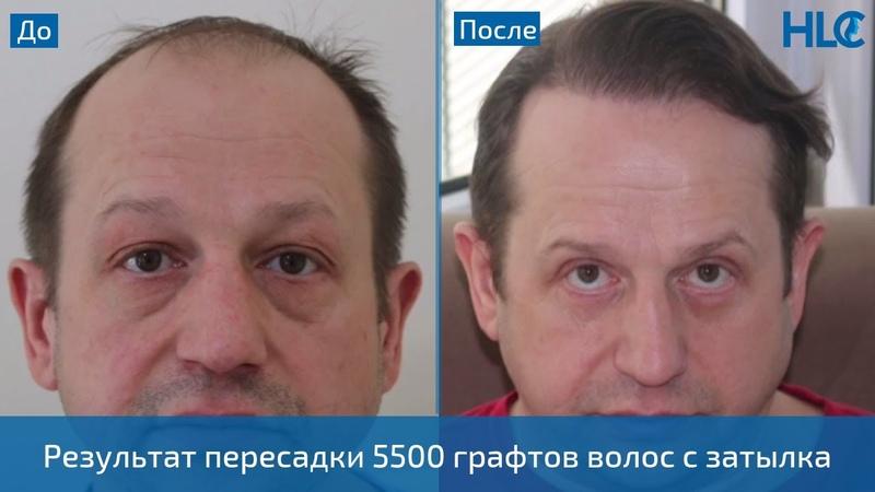 Пересадка 5500 графтов волос мужчине на голову