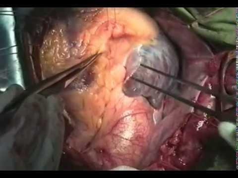АКШ с эндартерэкомией © Сoronary artery bypass grafting with endarterectomy