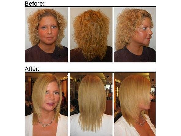 Демодекоз выпадение волос