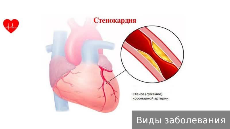 Нестабильная стенокардия. Как лечить нестабильную стенокардию.
