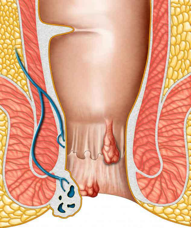 Жесткая сигмоидоскопия может быть вовлечена в диагностику геморроя.
