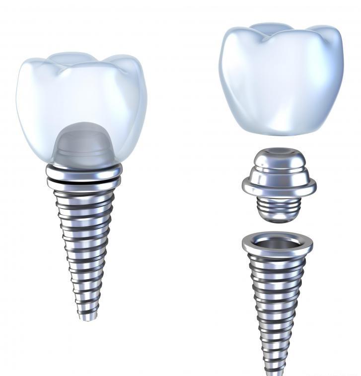 Иллюстрация зубного импланта с титановым абатментом.