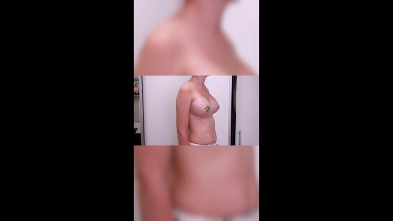 Эндоскопическое увеличение груди, импланты 370гр, фото спустя всего 2 недели после операции