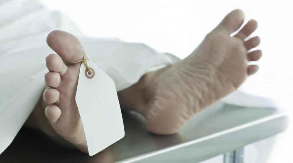 Некрофилия характеризуется сексуальным влечением к трупам.