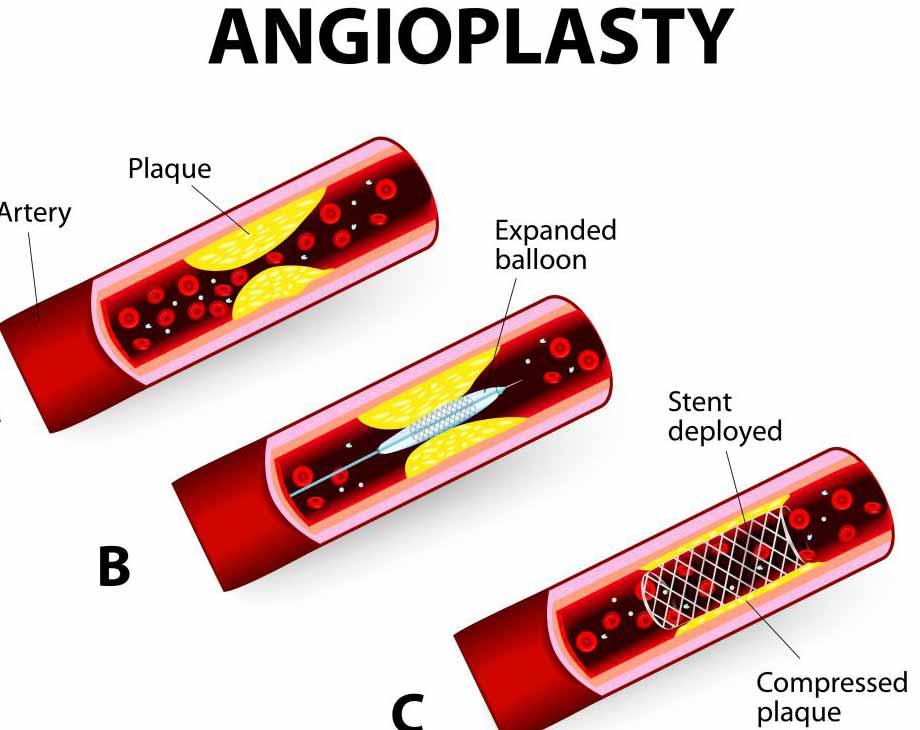 Когда у пациента тяжелая ишемическая болезнь сердца, он может выбрать баллонную ангиопластику.