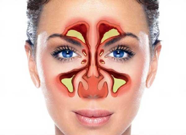 Если вы считаете, что у вас синусовая инфекция, вам, возможно, придется обратиться к врачу.